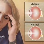 Google Health Search © - Myopia