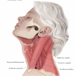 Cervical-Dystonia